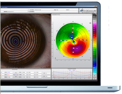 Corneal Topography Computer Map